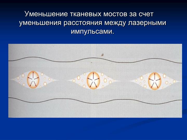 Уменьшение тканевых мостов за счет уменьшения расстояния между лазерными импульсами.