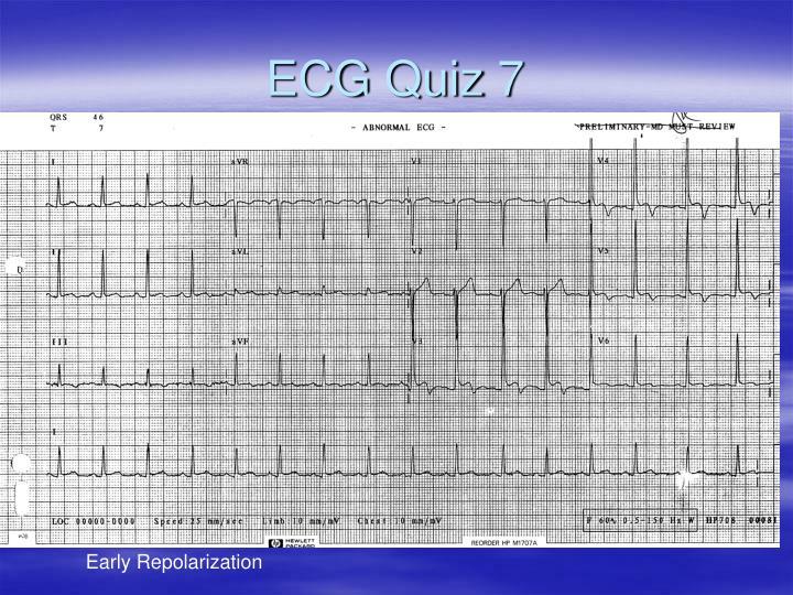ECG Quiz 7
