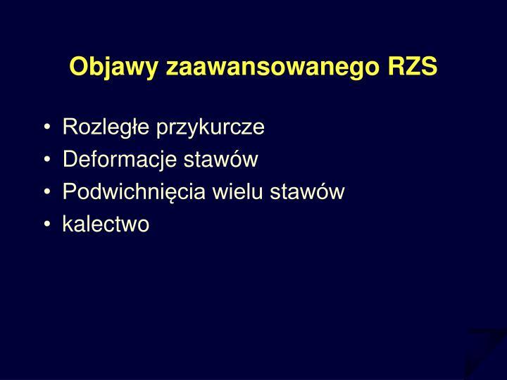 Objawy zaawansowanego RZS
