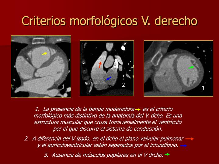 Criterios morfológicos V. derecho