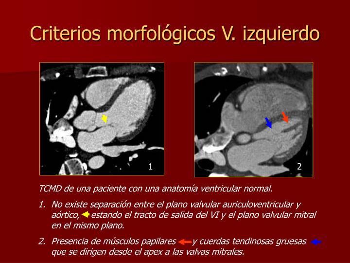 Criterios morfológicos V. izquierdo