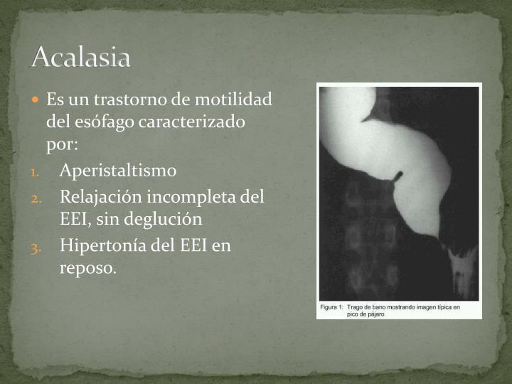 Acalasia