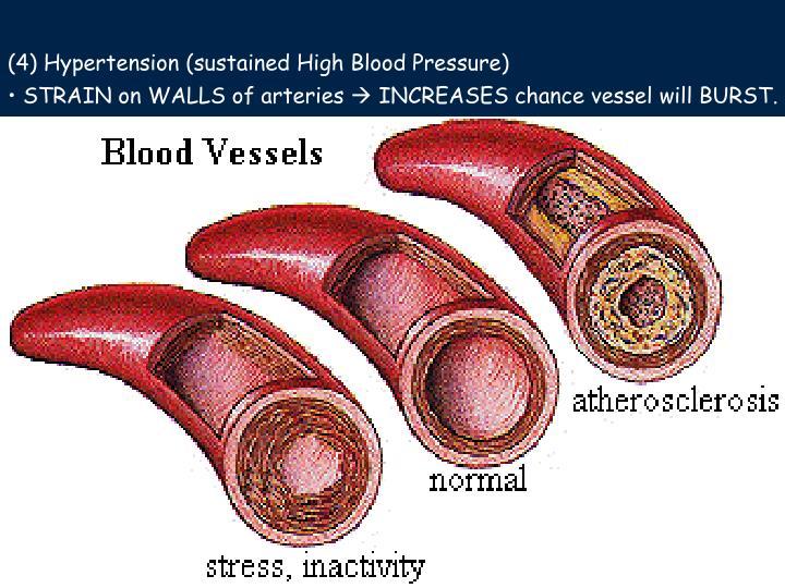 (4) Hypertension (sustained High Blood Pressure)