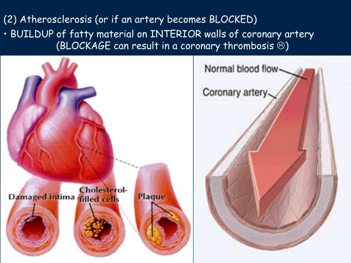 (2) Atherosclerosis (or if an artery becomes BLOCKED)