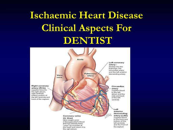 Ischaemic heart disease clinical aspects for dentist
