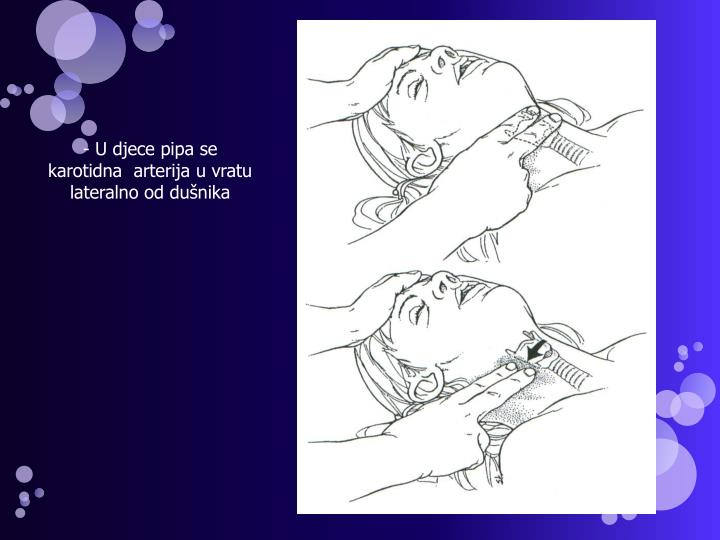U djece pipa se karotidna  arterija u vratu lateralno od dušnika