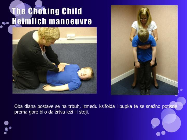 The Choking Child