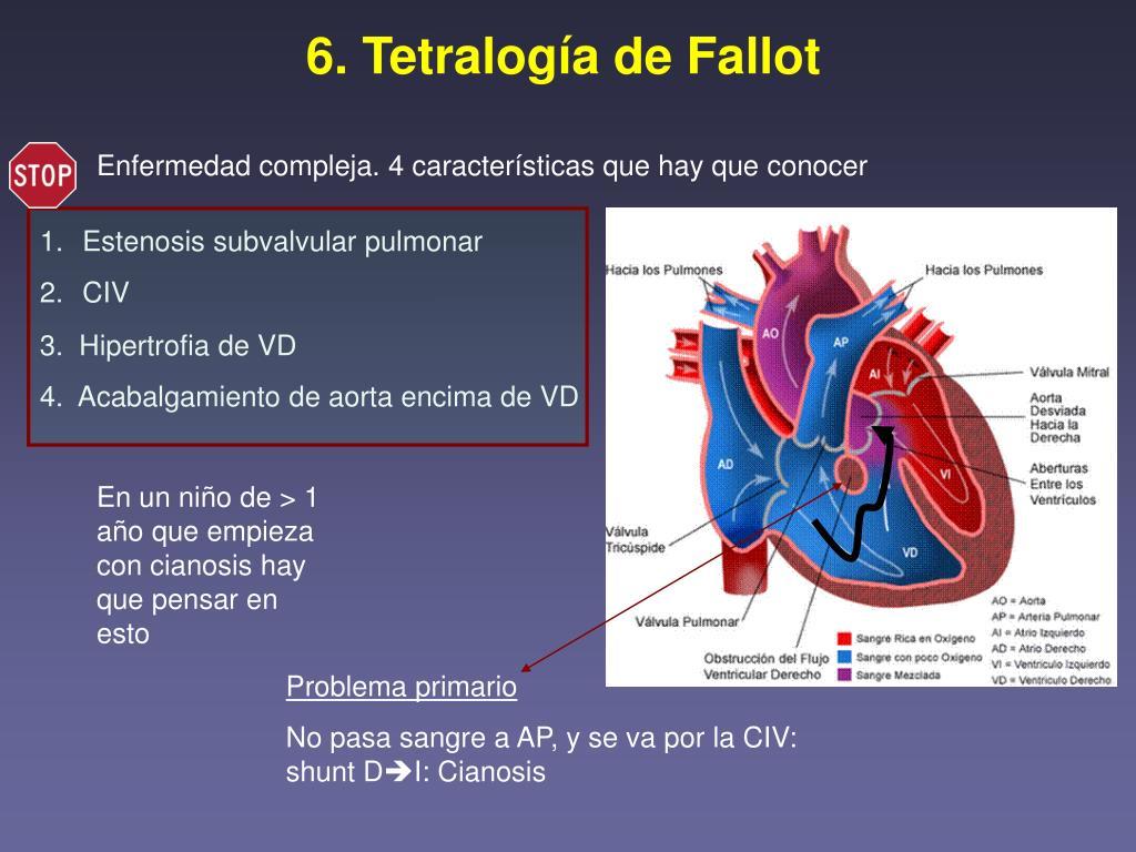 Similar a Hipertensión portal