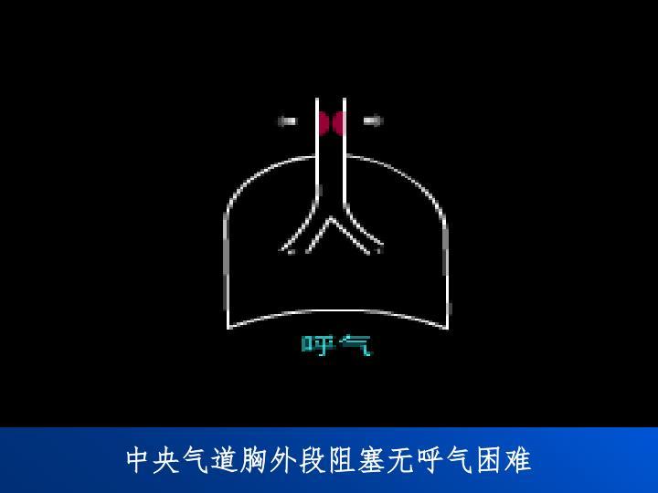 中央气道胸外段阻塞无呼气困难