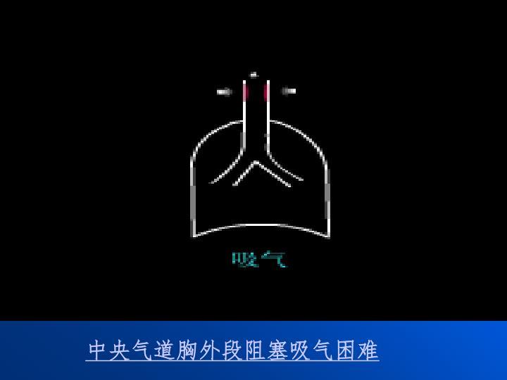 中央气道胸外段阻塞吸气困难