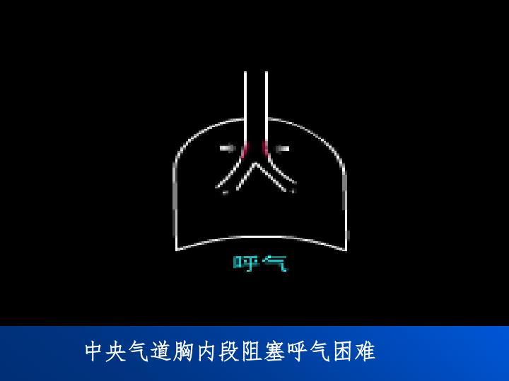 中央气道胸内段阻塞呼气困难
