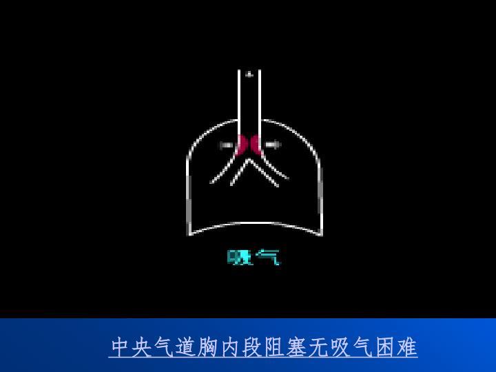 中央气道胸内段阻塞无吸气困难