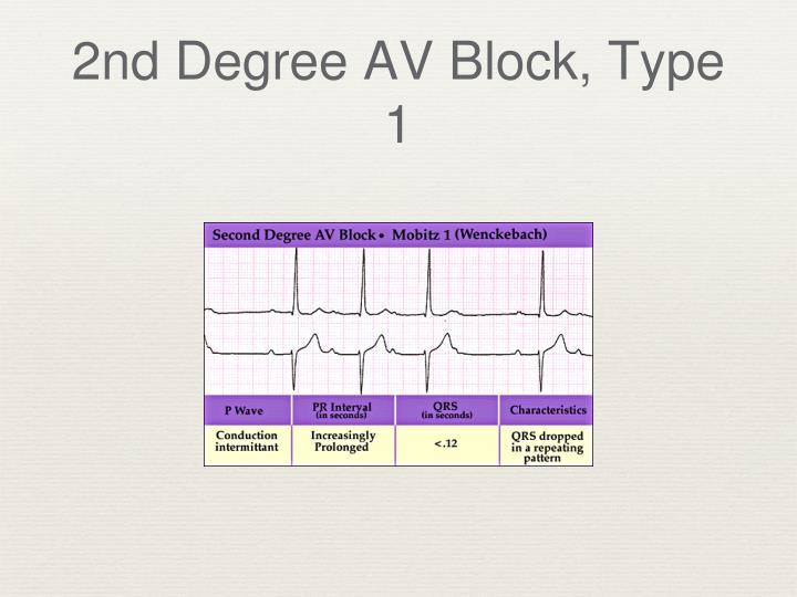 2nd Degree AV Block, Type 1