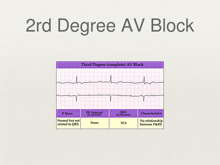 2rd Degree AV Block