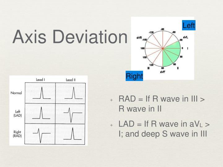 Axis deviation