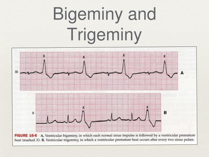 Bigeminy and Trigeminy