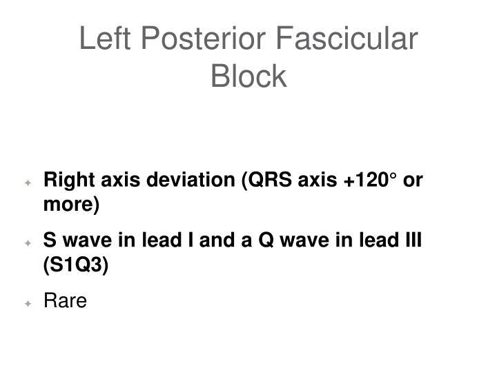 Left Posterior Fascicular Block