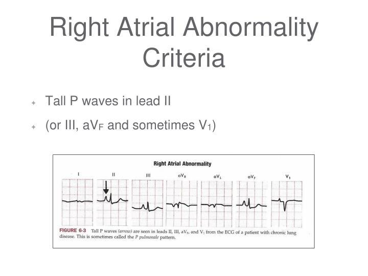 Right Atrial Abnormality Criteria