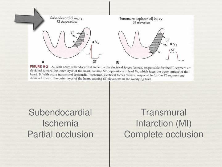 Subendocardial