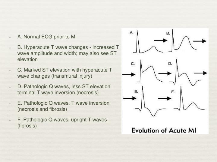 A. Normal ECG prior to MI