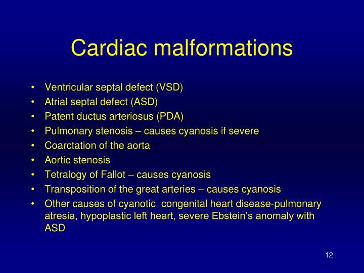 Cardiac malformations