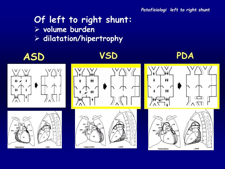 Patofisiologi  left to right shunt