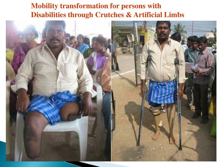 Mobility transformation for persons with Disabilities through Crutches & Artificial Limbs