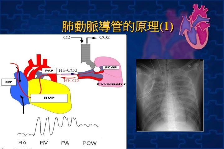 肺動脈導管的原理