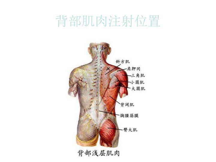 背部肌肉注射位置
