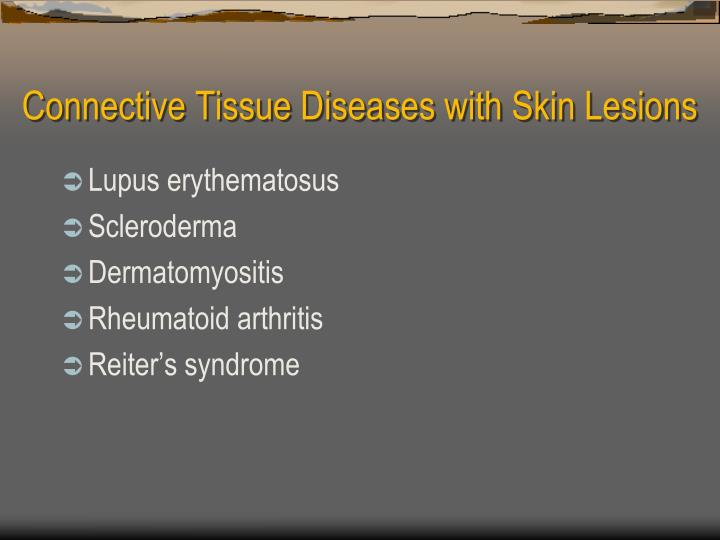 Connective tissue diseases with skin lesions