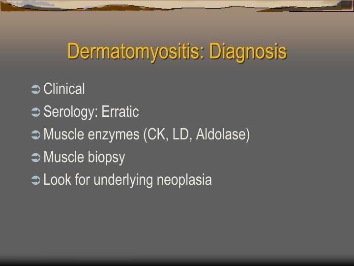 Dermatomyositis: Diagnosis