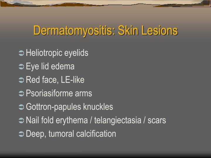 Dermatomyositis: Skin Lesions