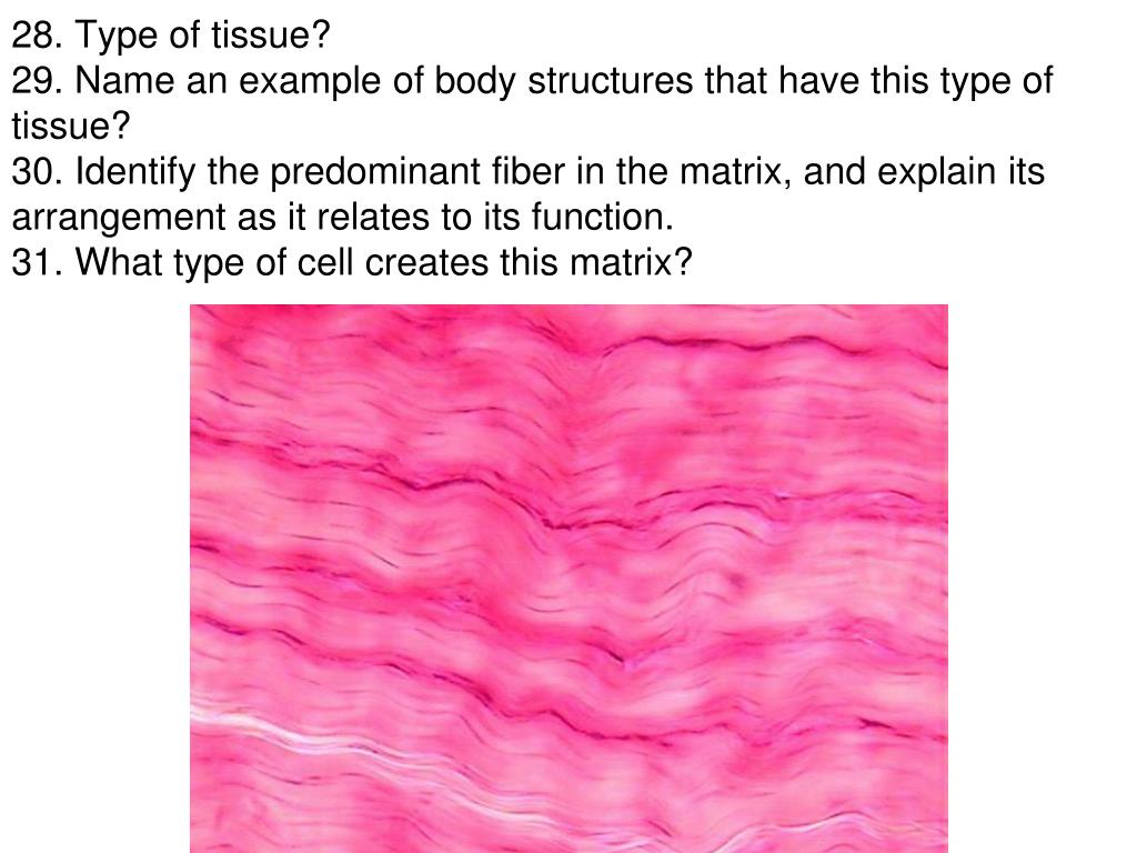 PPT - What type of tissue is indicated by the blue arrow ...