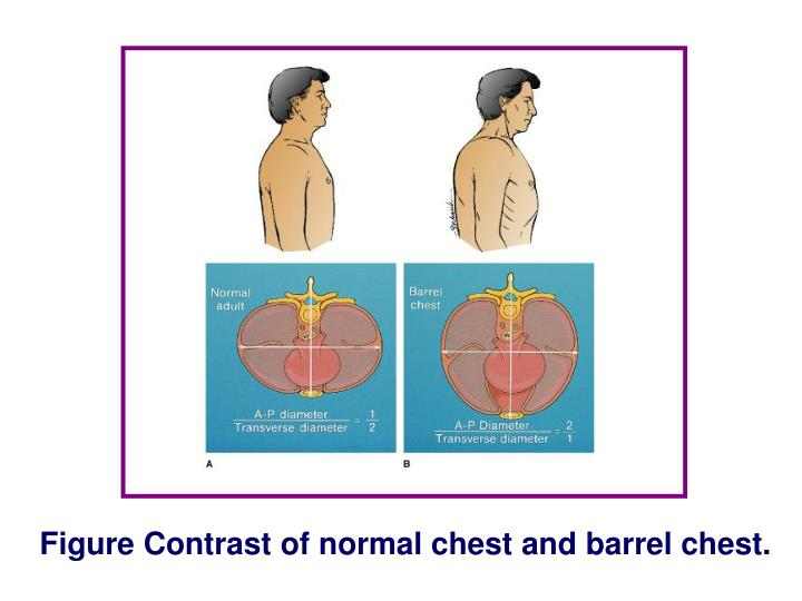 Figure Contrast of normal chest and barrel chest.
