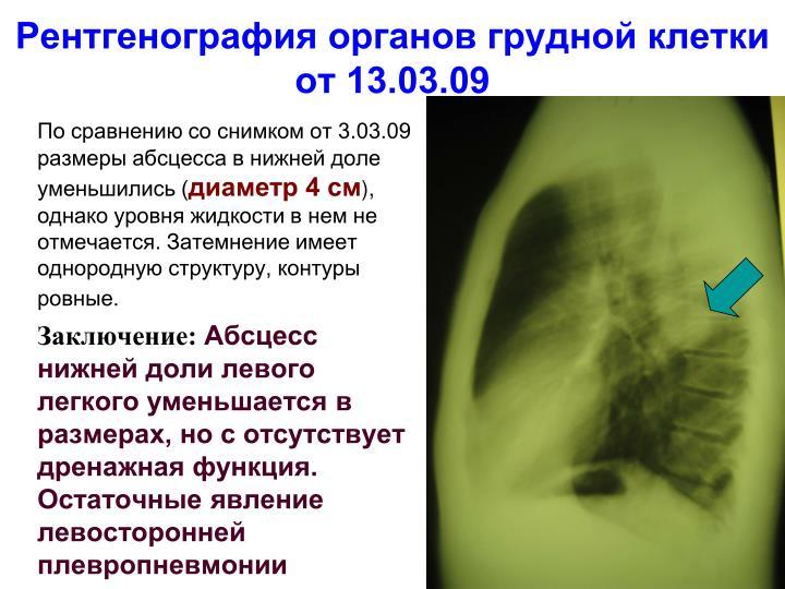 Рентгенография органов грудной клетки от 13.03.09