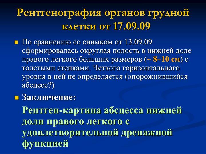 Рентгенография органов грудной клетки от 17.09.09
