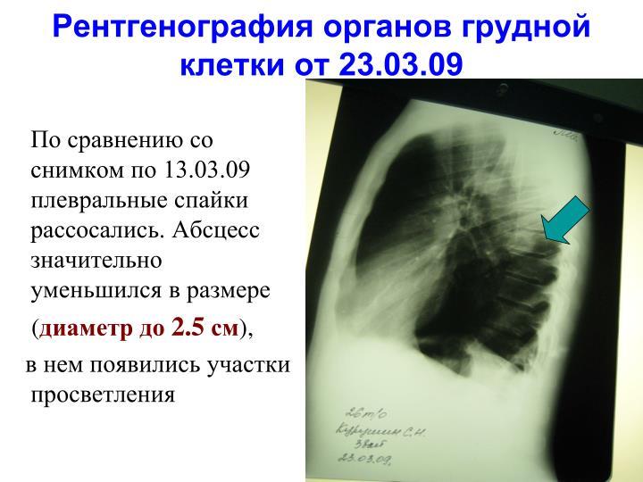 Рентгенография органов грудной клетки от 23.03.09