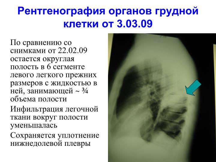 Рентгенография органов грудной клетки от 3.03.09
