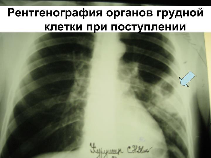Рентгенография органов грудной клетки при поступлении