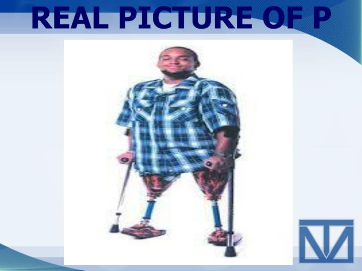 REAL PICTURE OF P