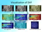 visualization of dvf