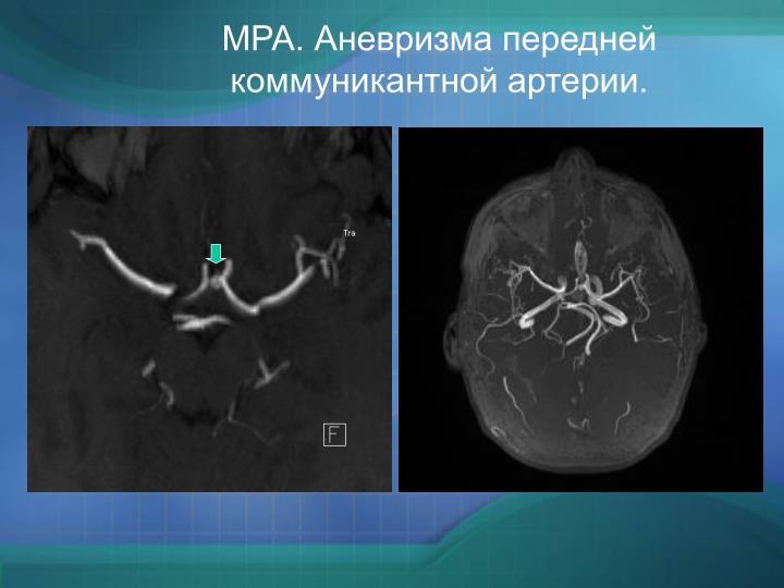 МРА. Аневризма передней коммуникантной артерии.