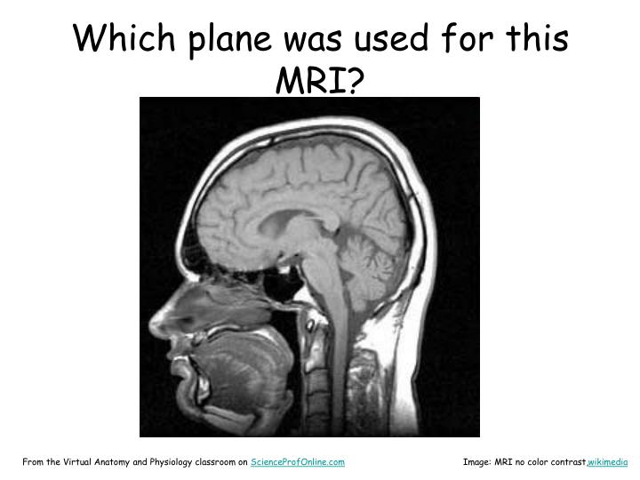Which plane was used for this MRI?
