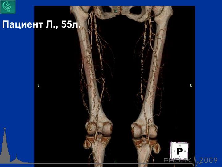 Пациент Л., 55л.