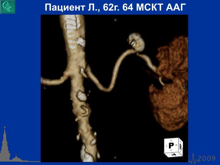 Пациент Л., 62г. 64 МСКТ ААГ