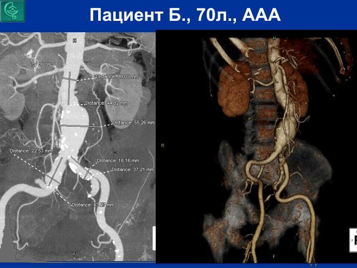 Пациент Б., 70л., ААА