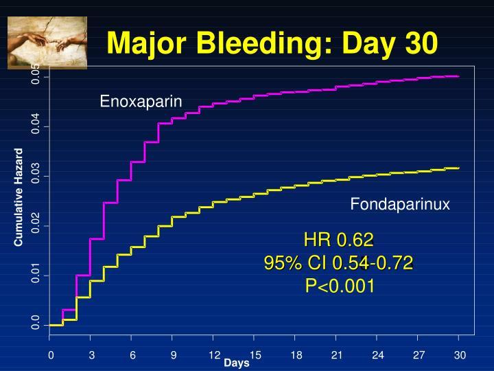 Major Bleeding: Day 30