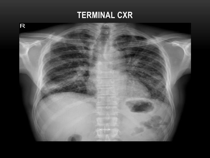 Terminal CXR