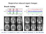 respiration induced signal changes