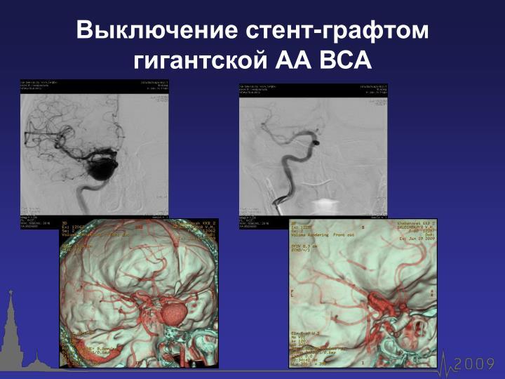 Выключение стент-графтом гигантской АА ВСА